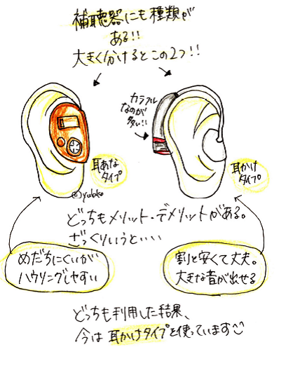 【補聴器の違い】