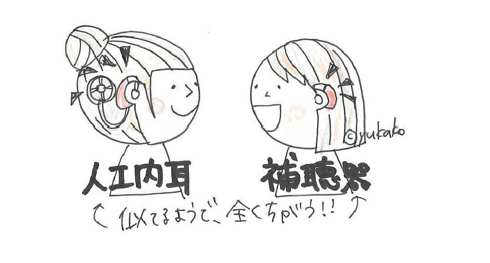 【分かりやすい!】人工内耳のキホンについて徹底解説!
